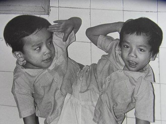 """GS.BS Trần Đông A: Những bức ảnh ca tách cặp song sinh dính liền Việt - Đức như là """"bằng chứng y khoa"""" 3"""